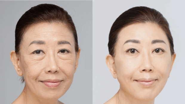 Sau nhiều năm không chăm sóc da, Ánh Minh bắt đầu thể hiện rõ tuổi thật của mình. Với những nếp nhăn sâu, làn da chảy xệ và các vết chân chim, cô cần được giúp đỡ. Innogialuron đã lấy đi ít nhất 20 năm tuổi khỏi gương mặt cô và phục hồi sự tự tin